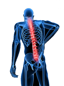 The Cost of Back Injuries